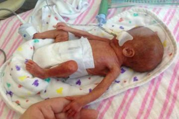 smallest new born baby